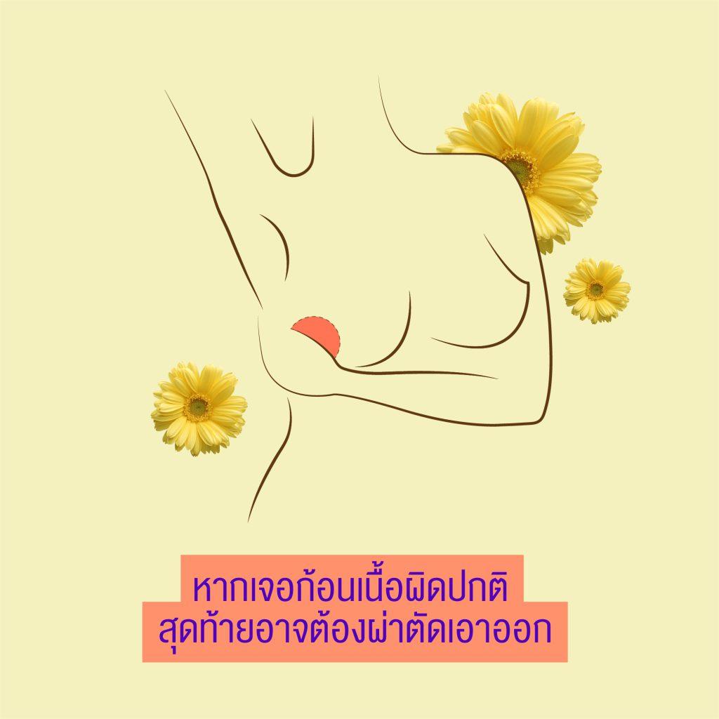 อันตรายที่เกิดจากการ ฉีดไขมัน